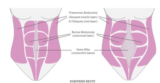 2012-10-17-DiastasisRectiV3