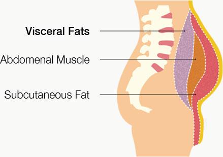 Visceral Fat Obesity 41